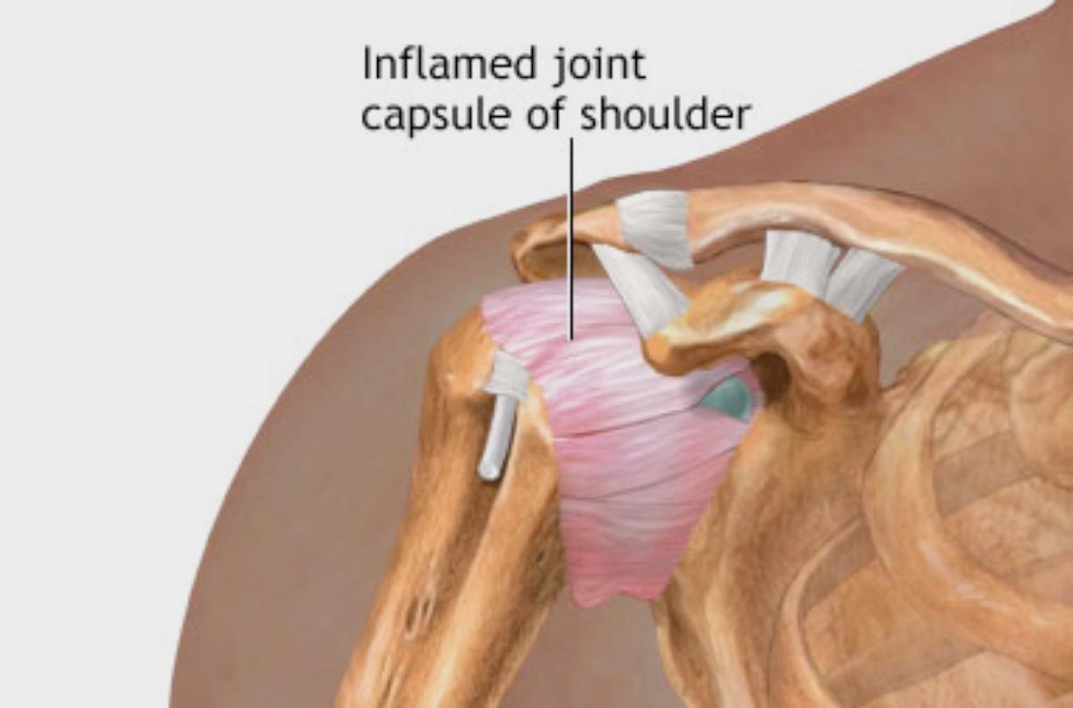 What Is A Frozen Shoulder Pro Active